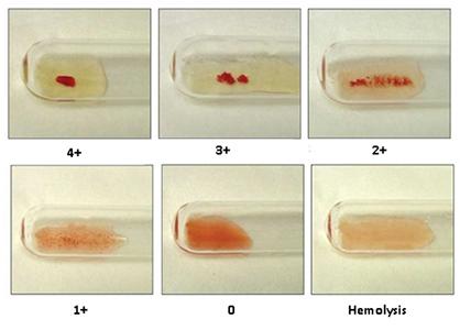 blood-test5