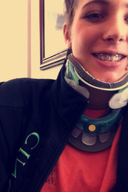 Amazing Braces Wired Shut Gallery - Electrical Circuit ...